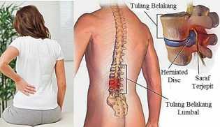 Ciri-ciri TBC Tulang yang Kerap Dikira Gejala Penyakit Biasa